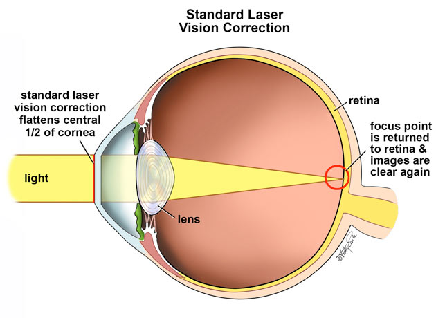 the eye and laser eye surgery We at bupa have put together all you need to know about laser eye surgery including the types of surgery available and whether it's covered on the nhs.