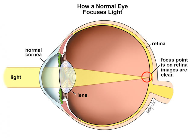 What is custom lasik diagram a ccuart Gallery